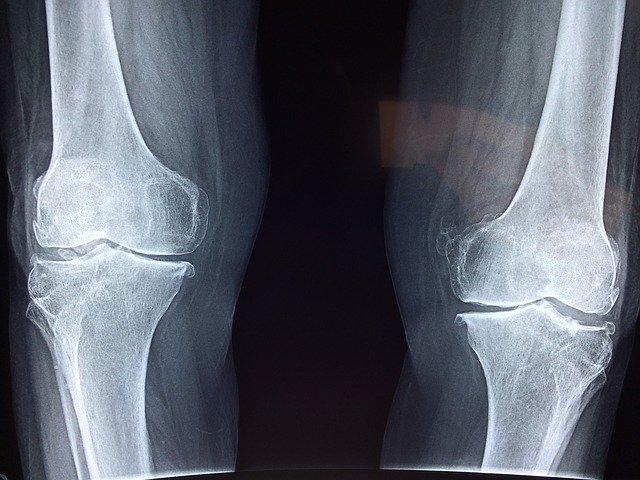 Indemnización por grandes lesionados